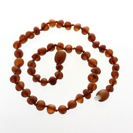 Raw Cognac Baroque Teething Baltic amber Necklace